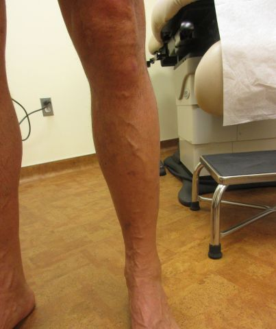 left leg after procedure