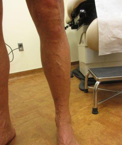 left leg after procedure