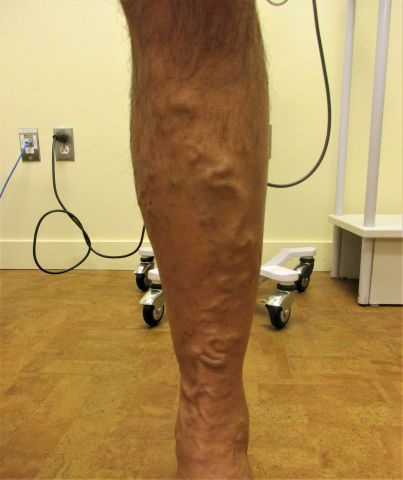 left leg before procedure