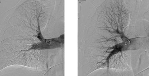 Pulmonary_Embolism_before_and_after
